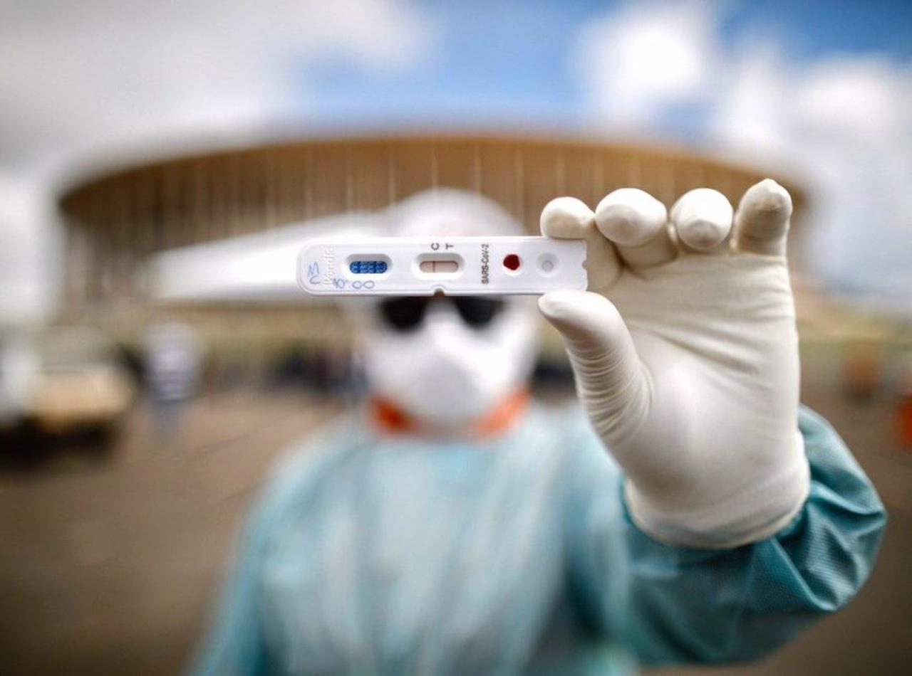 08062020 teste covid 19 Easy Resize.com - APARECIDA: Secretaria de saúde fará testes de Covid-19 nos profissionais que estão na linha de frente do combate ao coronavírus.