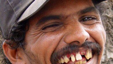 SORRISO 390x220 - PRA NINGUÉM FICAR BANGUELO: Prefeitura de Bernardino Batista quer gastar R$ 90 mil com próteses dentárias; VEJA.